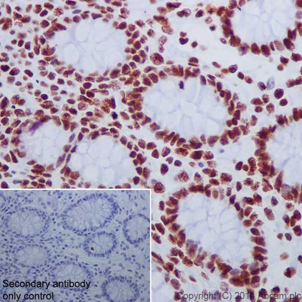 Immunohistochemistry (Formalin/PFA-fixed paraffin-embedded sections) - Anti-Histone H2A.X (acetyl K5) + Histone H2A (acetyl K5) antibody [EPR17589] - ChIP Grade (ab177863)