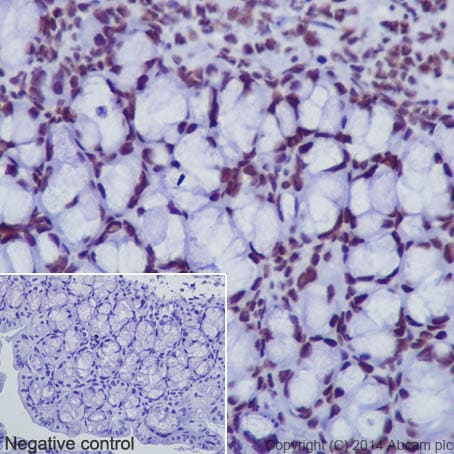 Immunohistochemistry (Formalin/PFA-fixed paraffin-embedded sections) - Anti-Histone H3 (acetyl K18) antibody [EPR16595] - ChIP Grade (ab177870)