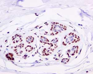 Immunohistochemistry (Formalin/PFA-fixed paraffin-embedded sections) - Anti-LIG1 antibody [EPR12464] (ab177946)