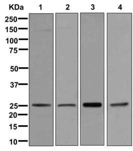 Western blot - Anti-RAB3B antibody [EPR12987] (ab177949)