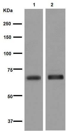 Western blot - Anti-NPR-C antibody [EPR12716] - C-terminal (ab177954)
