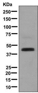 Western blot - Anti-K31 antibody [EPR12855(B)] (ab177955)