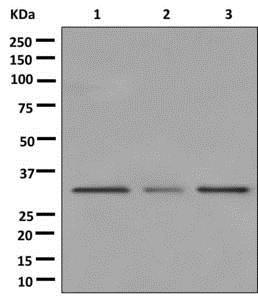 Western blot - Anti-MMACHC/CblC antibody [EPR11268] (ab177956)