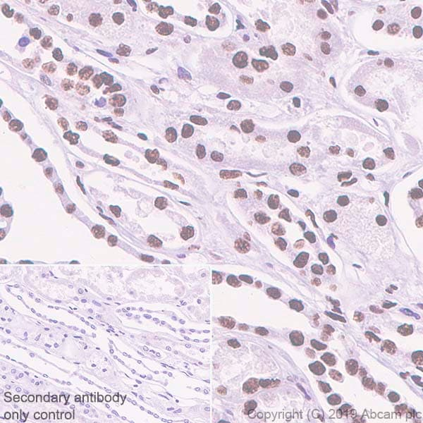 Immunohistochemistry (Formalin/PFA-fixed paraffin-embedded sections) - Anti-hnRNP M1-M4 antibody [EPR13509(B)] (ab177957)