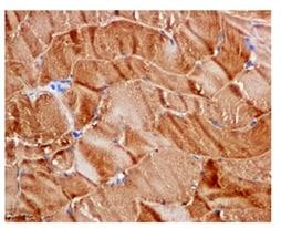 Immunohistochemistry (Formalin/PFA-fixed paraffin-embedded sections) - Anti-ST3GAL3 antibody [EPR10006(2)] (ab177959)