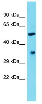 Western blot - Anti-DHRS12 antibody - C-terminal (ab177968)