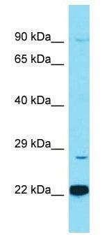 Western blot - Anti-CTRP12 antibody - N-terminal (ab177991)
