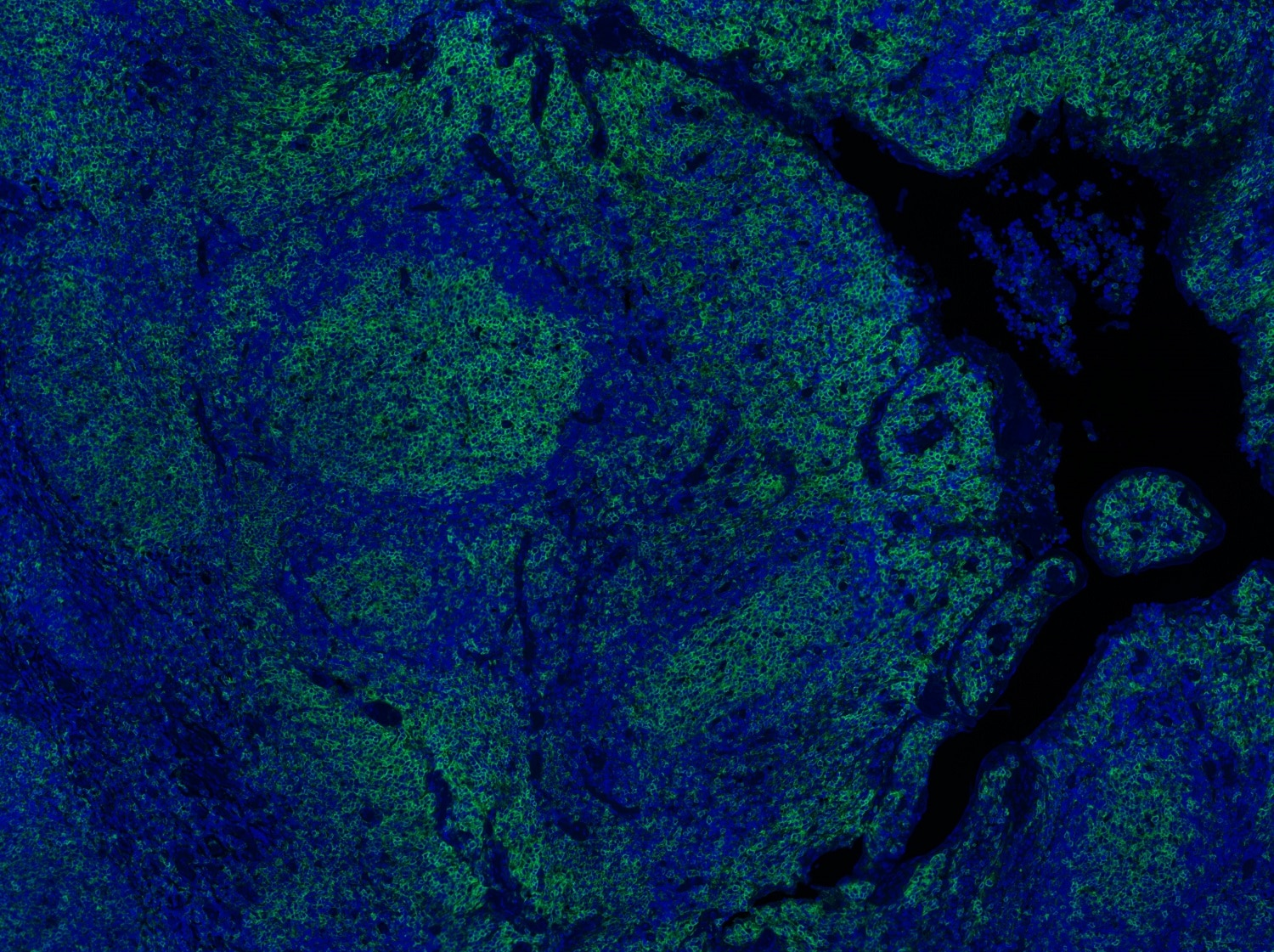 Immunohistochemistry (Formalin/PFA-fixed paraffin-embedded sections) - Anti-Fas antibody [EPR5700] - BSA and Azide free (ab178076)