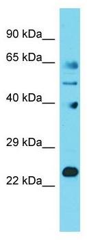 Western blot - Anti-JOSD1 antibody - N-terminal (ab178341)