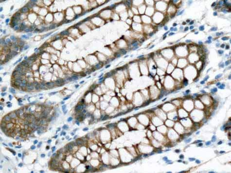 Immunohistochemistry (Formalin/PFA-fixed paraffin-embedded sections) - Anti-Aquaporin 1 antibody [EPR11588(B)] - BSA and Azide free (ab178352)