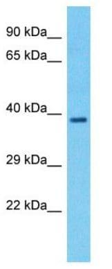 Western blot - Anti-LMF1 antibody - N-terminal (ab178358)