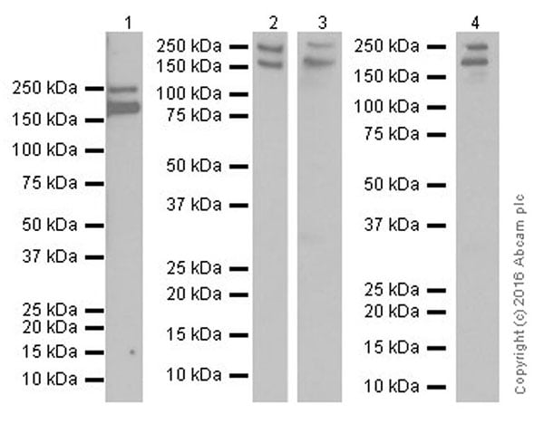Western blot - Anti-Myoferlin antibody [EPR18887] (ab178386)