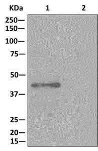 Immunoprecipitation - Anti-GALT antibody [EPR12555] (ab178406)