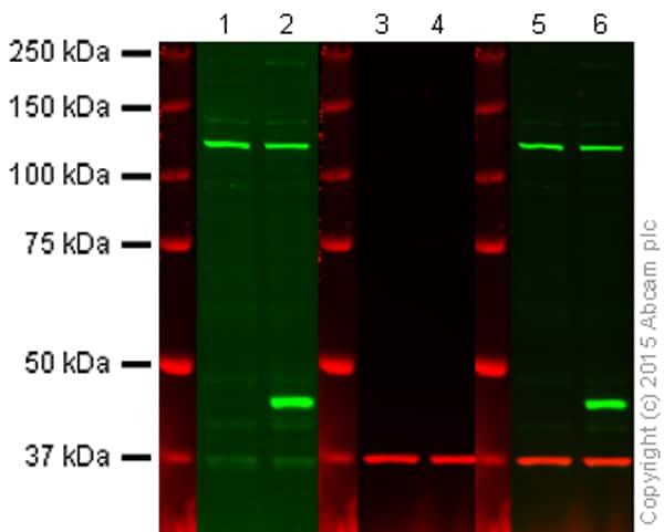 Western blot - Anti-GALT antibody [EPR12555] (ab178406)