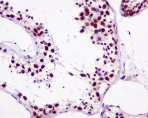 Immunohistochemistry (Formalin/PFA-fixed paraffin-embedded sections) - Anti-ATR (phospho S428) antibody [EPR2184] (ab178407)