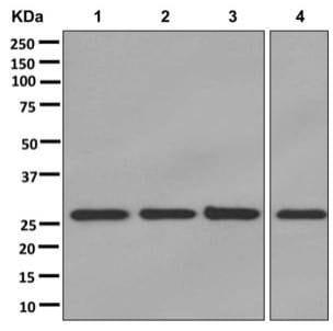 Western blot - Anti-SDHB antibody [EPR13042(B)] (ab178423)