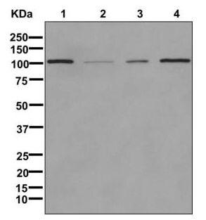Western blot - Anti-CD62P antibody [EPR1444(2)(B)] (ab178424)