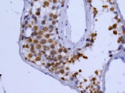 Immunohistochemistry (Formalin/PFA-fixed paraffin-embedded sections) - Anti-Histone H2B (testis specific) antibody [EPR12881] (ab178426)