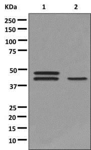 Western blot - Anti-HORMAD1 antibody [EPR10273] - C-terminal (ab178432)