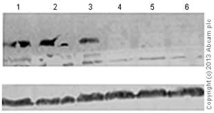 Western blot - Anti-Ref2P antibody (ab178440)