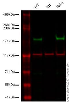 Western blot - Anti-Tuberin antibody [Y320] - BSA and Azide free (ab178441)
