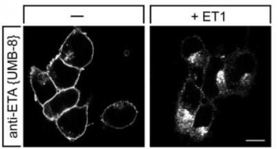 Immunocytochemistry/ Immunofluorescence - Anti-Endothelin A Receptor/ET-A antibody [UMB-8-37-1] (ab178454)