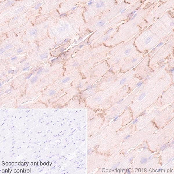Immunohistochemistry (Formalin/PFA-fixed paraffin-embedded sections) - Anti-Endothelin A Receptor/ET-A antibody [UMB-8-37-1] (ab178454)
