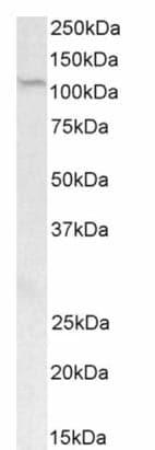 Western blot - Anti-PRDM9 antibody (ab178531)