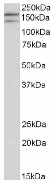 Western blot - Anti-DUOX1 antibody (ab178534)