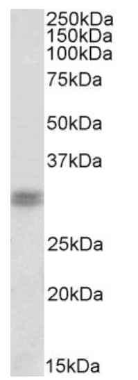 Western blot - Anti-CORD2 antibody - C-terminal (ab178535)