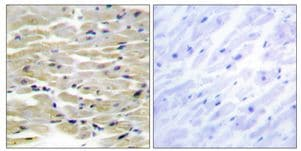 Immunohistochemistry (Formalin/PFA-fixed paraffin-embedded sections) - Anti-Tensin 3 antibody (ab178554)