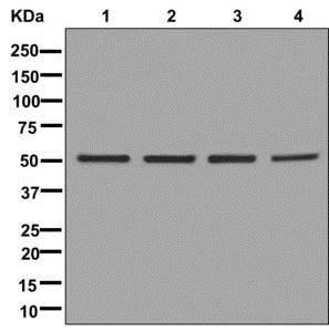 Western blot - Anti-DLST antibody [EPR13319(B)] (ab178692)