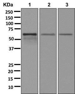 Western blot - Anti-TSEN54 antibody [EPR10062] (ab178696)