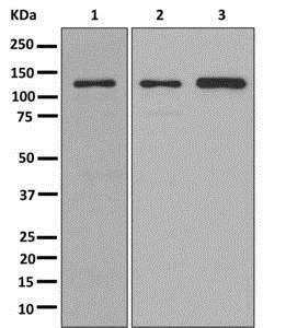 Western blot - Anti-KIRREL 3 antibody [EPR11631(2)] (ab178706)