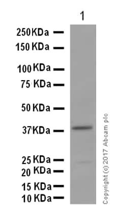 Western blot - Anti-AGXT antibody [EPR13232] (ab178708)