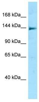 Western blot - Anti-NLRC5 antibody - N-terminal (ab178767)