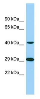 Western blot - Anti-TTLL1 antibody - C-terminal (ab178804)