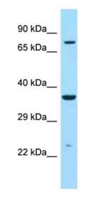 Western blot - Anti-IDUA antibody - C-terminal (ab178808)