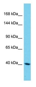 Western blot - Anti-SAMD9L antibody - N-terminal (ab178811)
