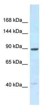 Western blot - Anti-UNC45B antibody (ab178813)