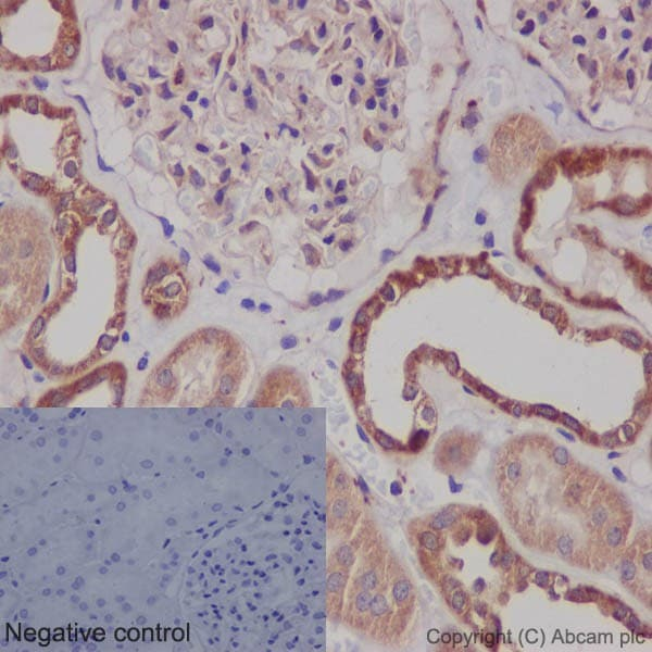 Immunohistochemistry (Formalin/PFA-fixed paraffin-embedded sections) - Anti-Bcl-XL antibody [EPR16642] (ab178844)