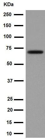 Western blot - Anti-Choline Acetyltransferase antibody [EPR16590] (ab178850)