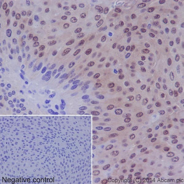 Immunohistochemistry (Formalin/PFA-fixed paraffin-embedded sections) - Anti-p38 (phospho T180) antibody [EPR16587] (ab178867)