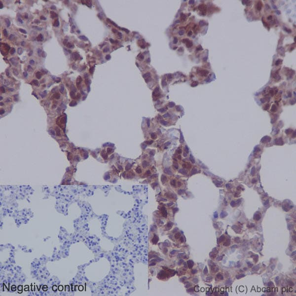 Immunohistochemistry (Formalin/PFA-fixed paraffin-embedded sections) - Anti-MEK1 + MEK2 antibody [EPR16667] (ab178876)