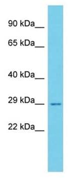 Western blot - Anti-C11orf70 antibody - C-terminal (ab178890)