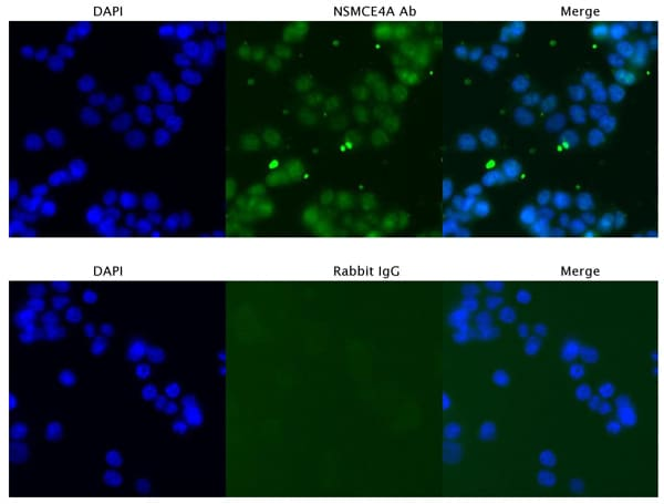 Immunocytochemistry/ Immunofluorescence - Anti-NSMCE4A antibody - C-terminal (ab178898)