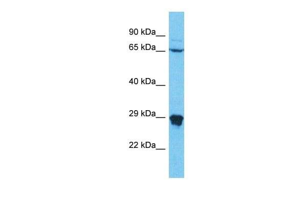 Western blot - Anti-N42L1 antibody - C-terminal (ab178908)