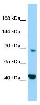 Western blot - Anti-MICAL2 antibody - C-terminal (ab178911)