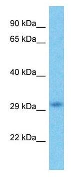 Western blot - Anti-HDAC1 antibody - C-terminal (ab178918)