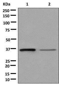 Western blot - Anti-SDSL antibody [EPR12192] (ab179435)